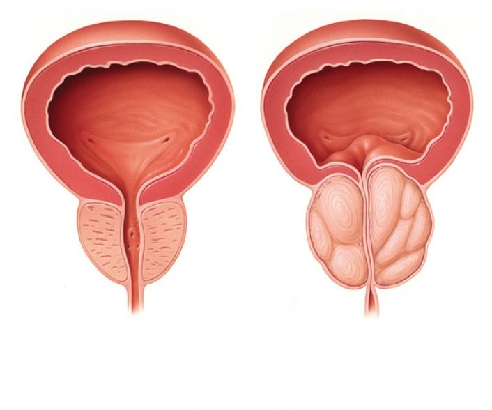 prostate-bph.jpg